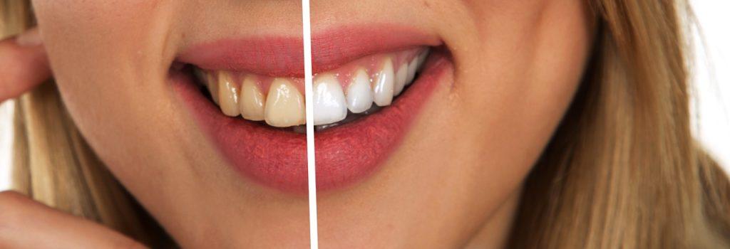 Comment avoir les dents blanches ? On vous explique tout !