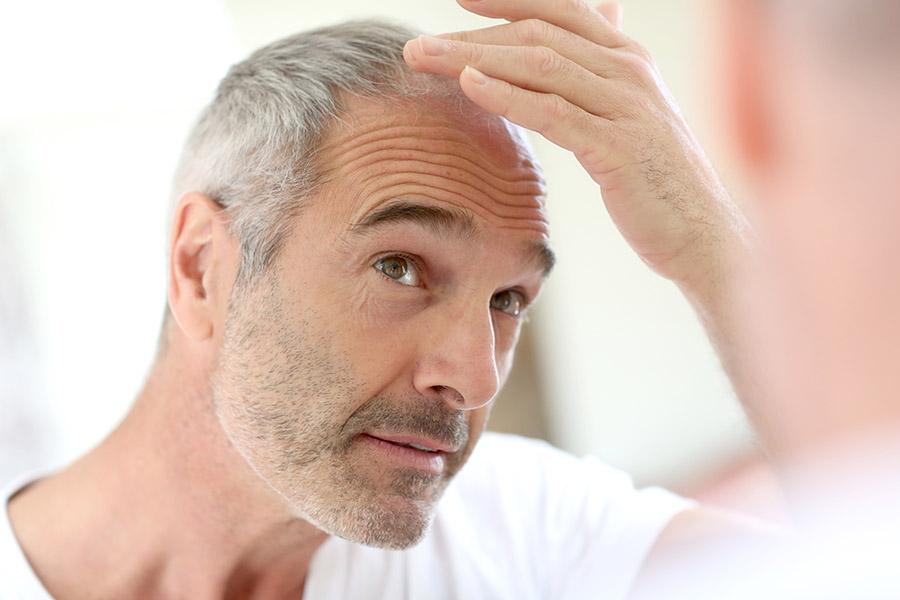 Traitement perte & chute de cheveux : le meilleur Shampong anti chute