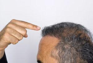 N'hésitez pas à parler de votre chute de cheveux avec votre médecin traitant