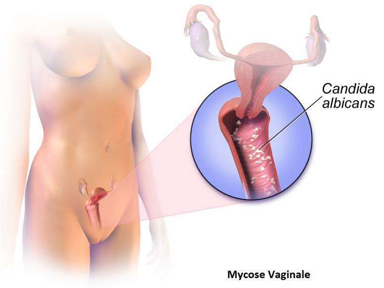 Schéma représentant l'emplacement courant des mycoses de type vaginale