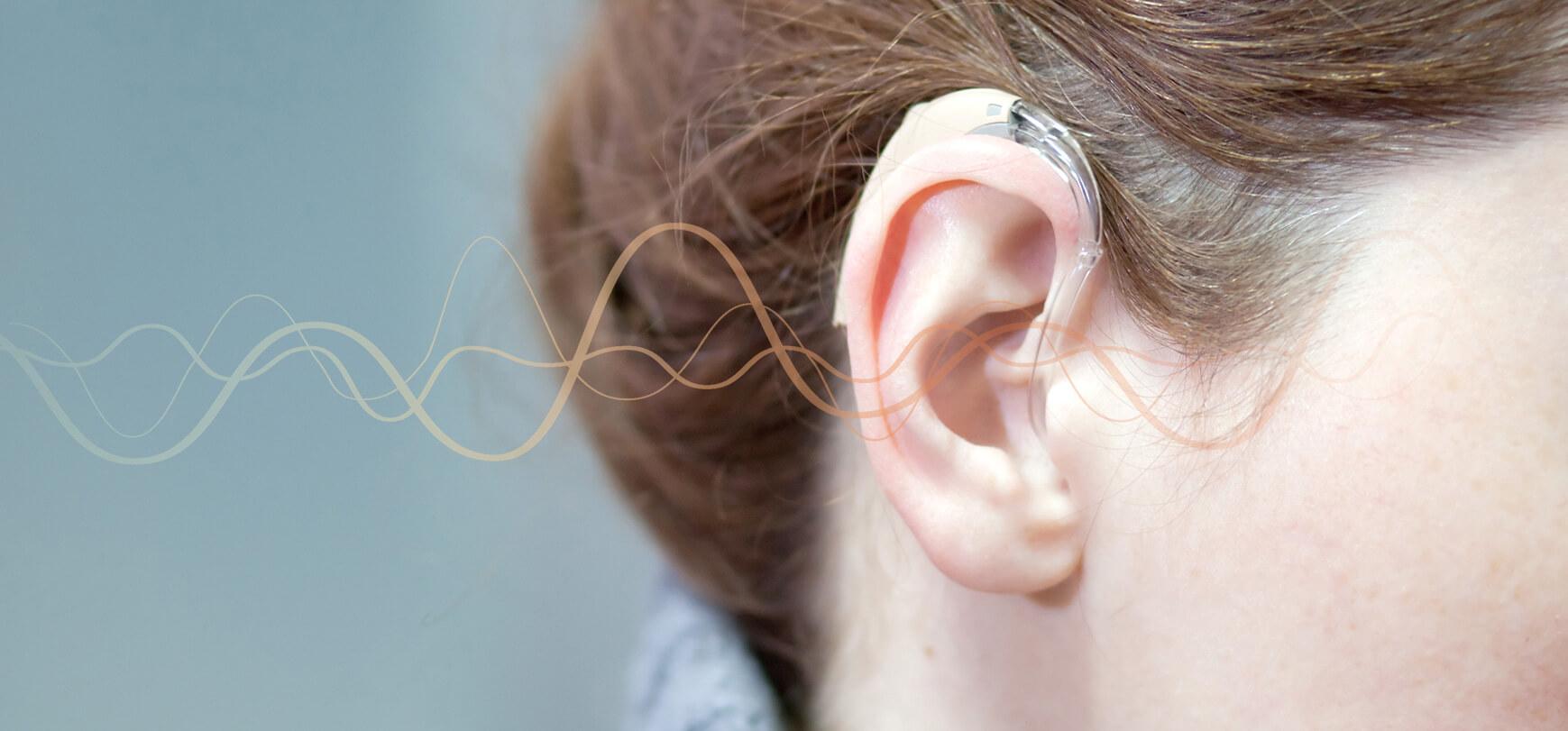 Gênes auditives légères à modérées :  Comment choisir votre appareil auditif ?